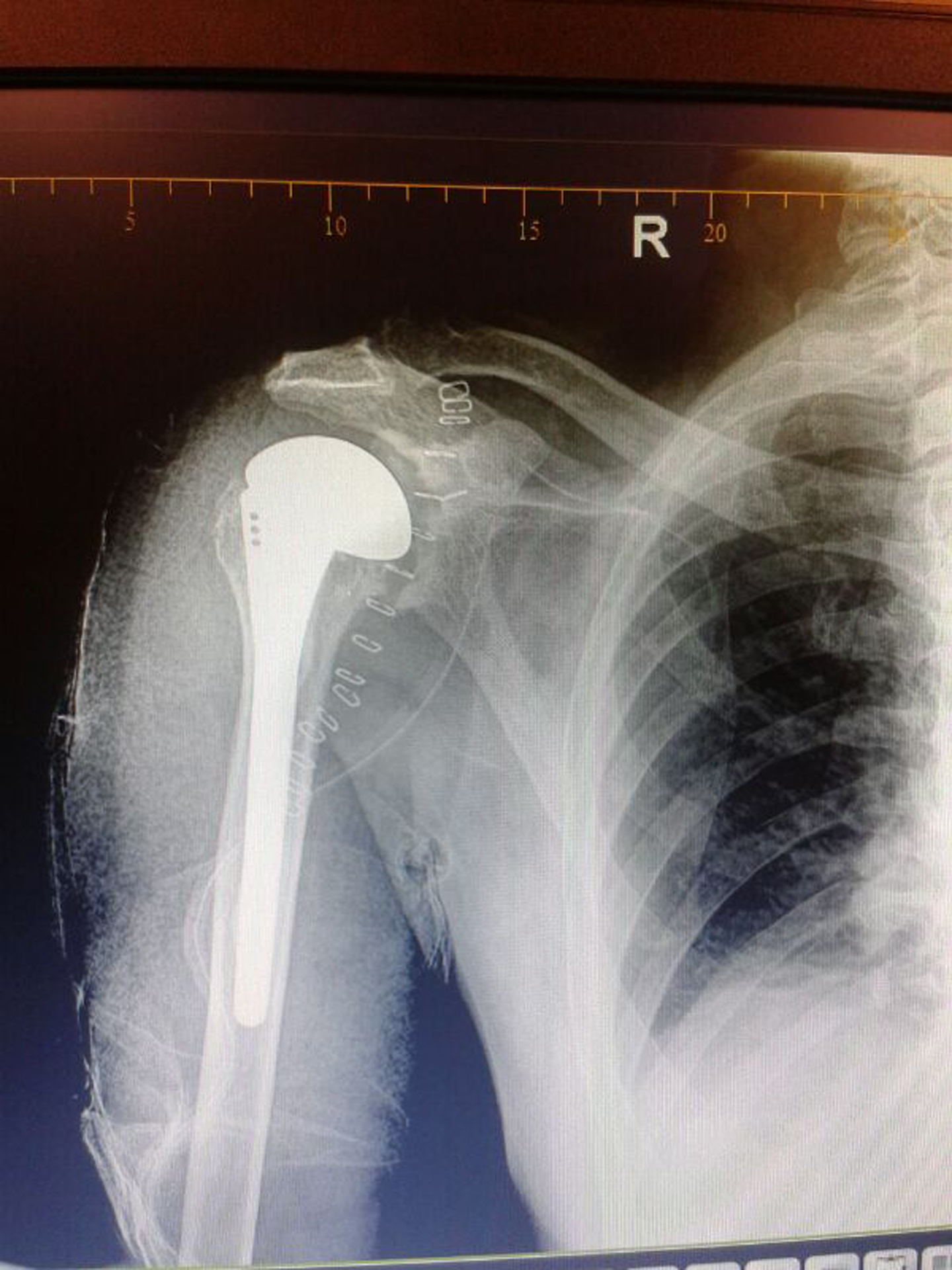 Shoulder Replacement at Health City Xray